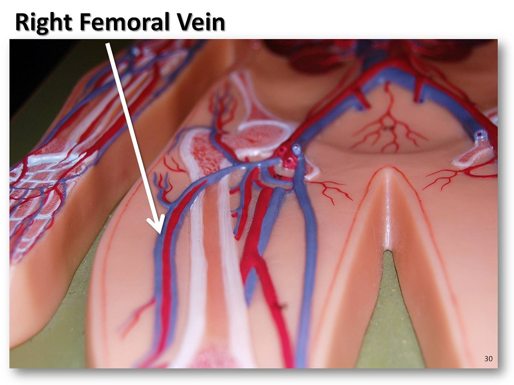 Right Femoral Vein The Anatomy Of The Veins Visual Guide