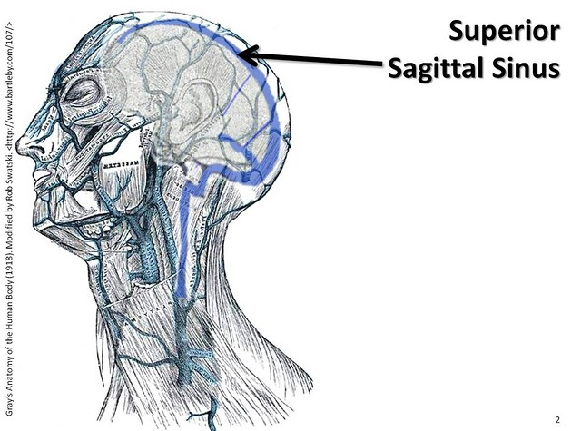 Superior Sagittal Sinus The Anatomy Of The Veins Visual