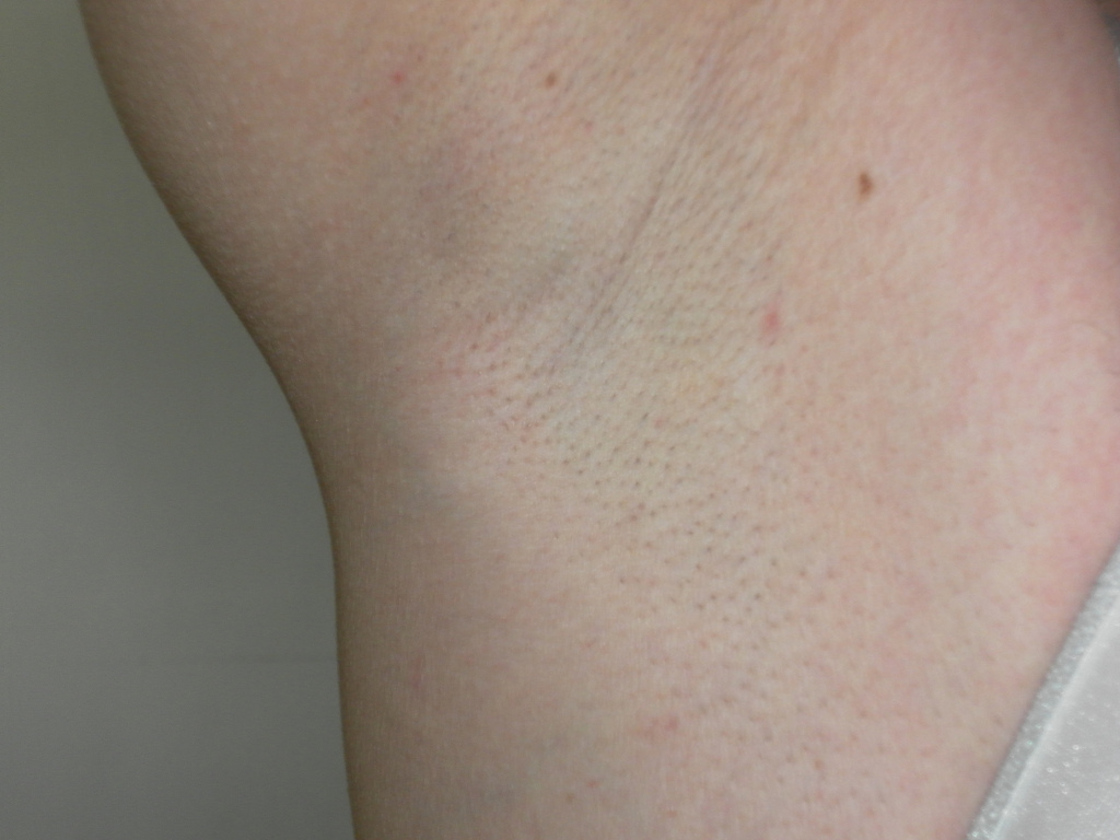 armpit female