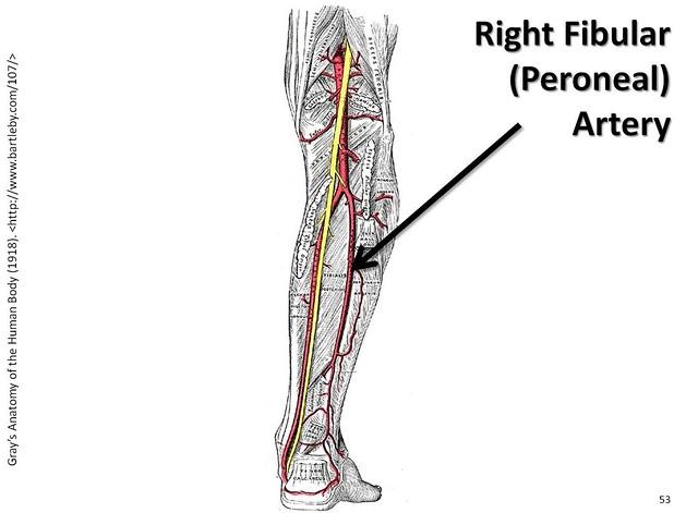 Peroneal artery anatomy