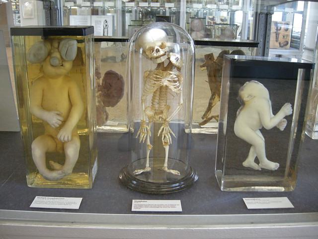 charite berlin museum
