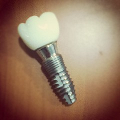 Prototype Dental Implant