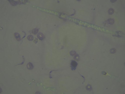 Trichuris egg in a faecal sample