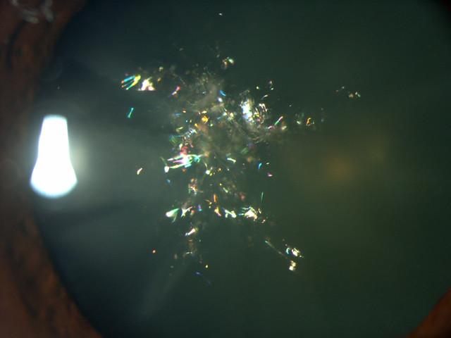 Christmas Tree Cataract