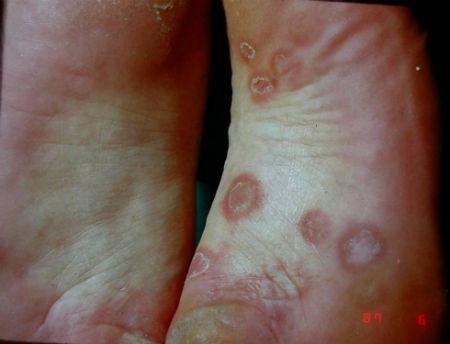 3-Sifilis secundaria clavos plantares