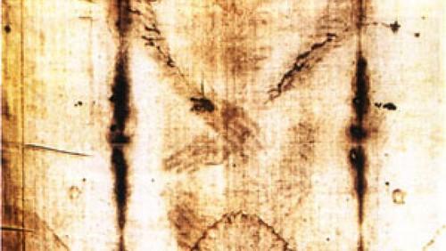 Imagen en positivo con detalle del clavo en la muñeca