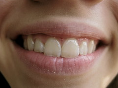 tooth, lip, tooth bleaching, close-up, mouth, jaw, smile, organ,