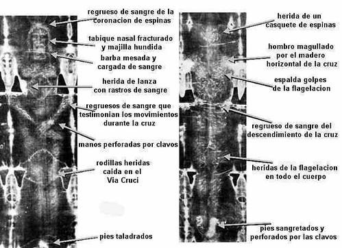 Las heridas en el síndone, en el frente y en la espalda