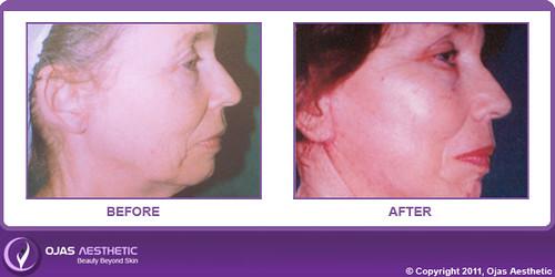 Facelift Surgery Procedure Facelift Surgery Breast