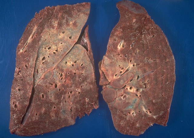 Sarcoid granuloma - definition of sarcoid granuloma by The ...