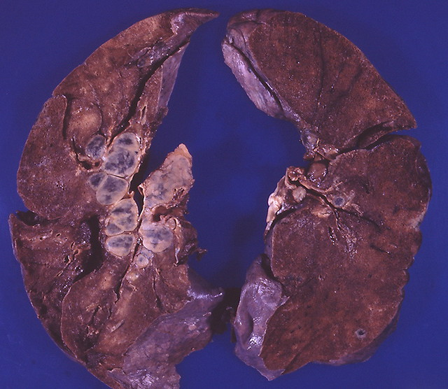 Image Result For Stage  Lung
