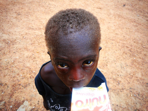 African Boy with Asperger syndrome