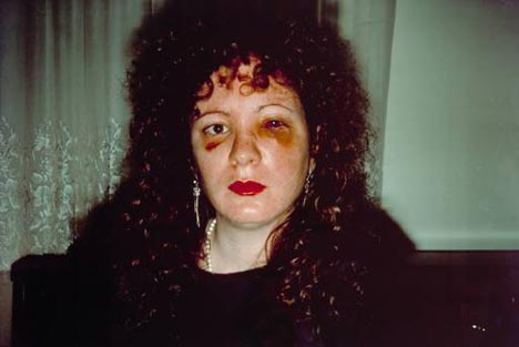 self portrait of Nan Goldin. She has a black eye and a bruised face.