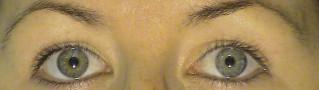 La función ocular es absolutamente normal, ya que no va asociada a ninguna enfermedad ocular.
