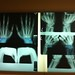 Small photo of Hand x-rays