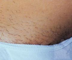 how to get rid of bumps on bikini line