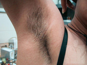 Underarm Hair - Before Treatment