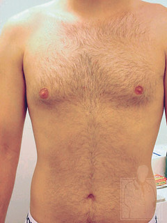 Chest Hair - Before Treatment