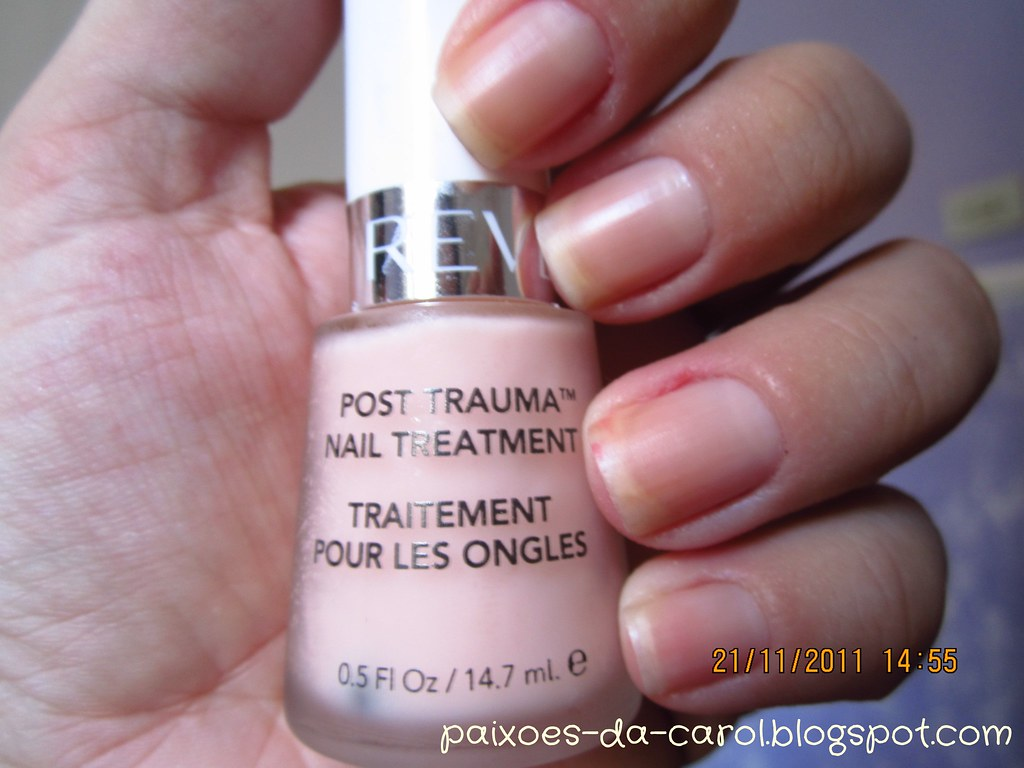 Post Trauma Nail Treatment - Revlon | A base de tratamento q… | Flickr