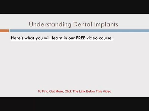 Understanding Dental Implants