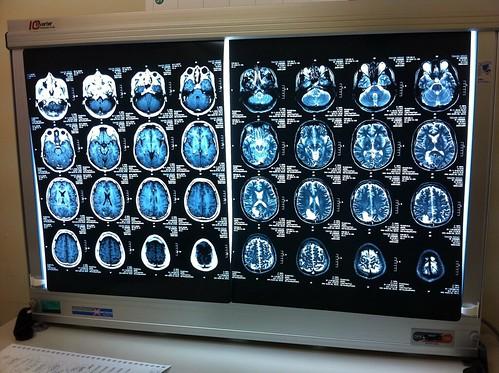 脳腫瘍摘出手術前後のMRI画像