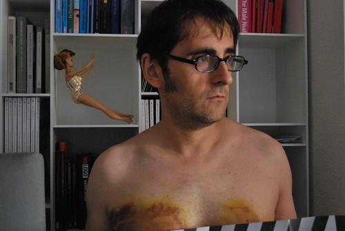 breast implants complications