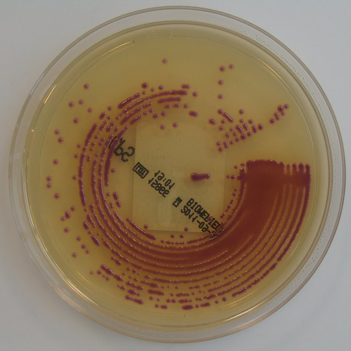 Escherichia coli on ChromID CPS agar