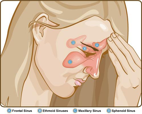 Sinuses