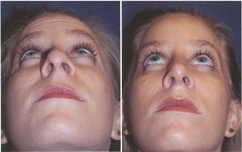 RHINOPLASTY UNDER BEFORE AND AFTER