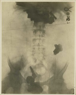 X-ray of foreign bodies (Reeve 43069), National Museum of Health and Medicine