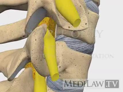 c-6 retrolisthesis of spine