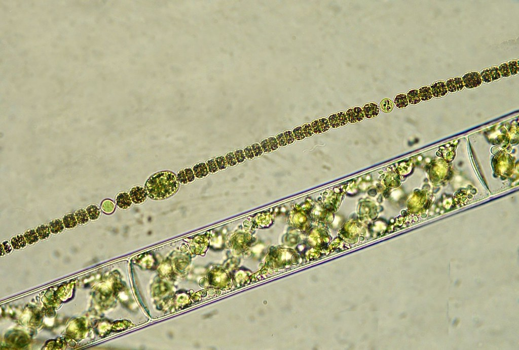 Anabaena y Spirogyra