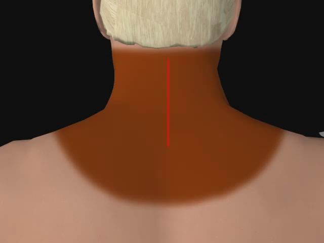 Cervical Spine Laminoplasty with metal strut medico legal videos Flickr Photo Shar