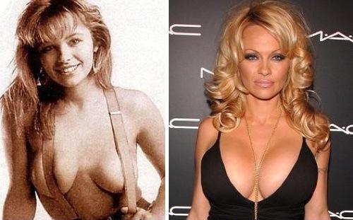 Pamela Anderson fakeboobs