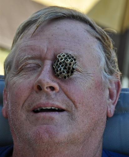 I Always Hate it When I Fall Asleep in a Lawn Chair While Camping and a Wasp Builds a Nest on My Eye by ricko