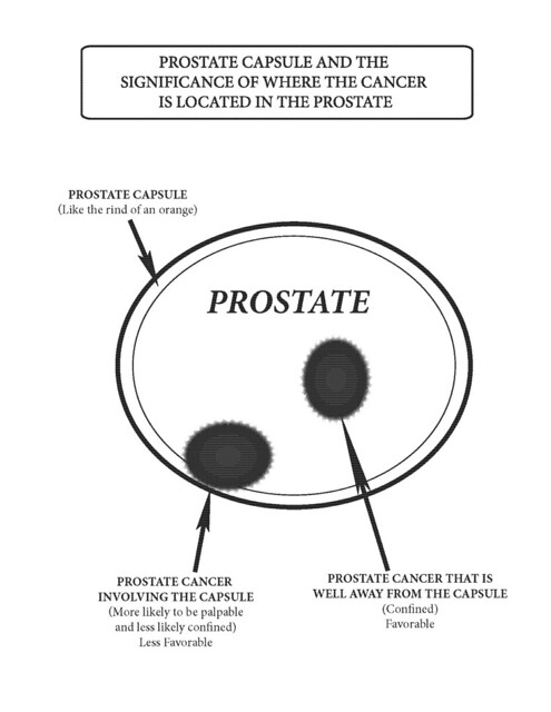 The Prostate Capsule