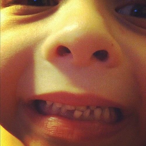 OMG we have our first wiggly tooth!