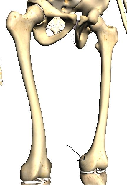 Recent Photos The Commons Getty Collection Galleries World Map App    Medial Epicondyle Of Femur