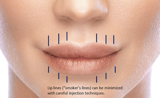 Lip Enhancement Smokers Lines Here Dr Sharma Shows How