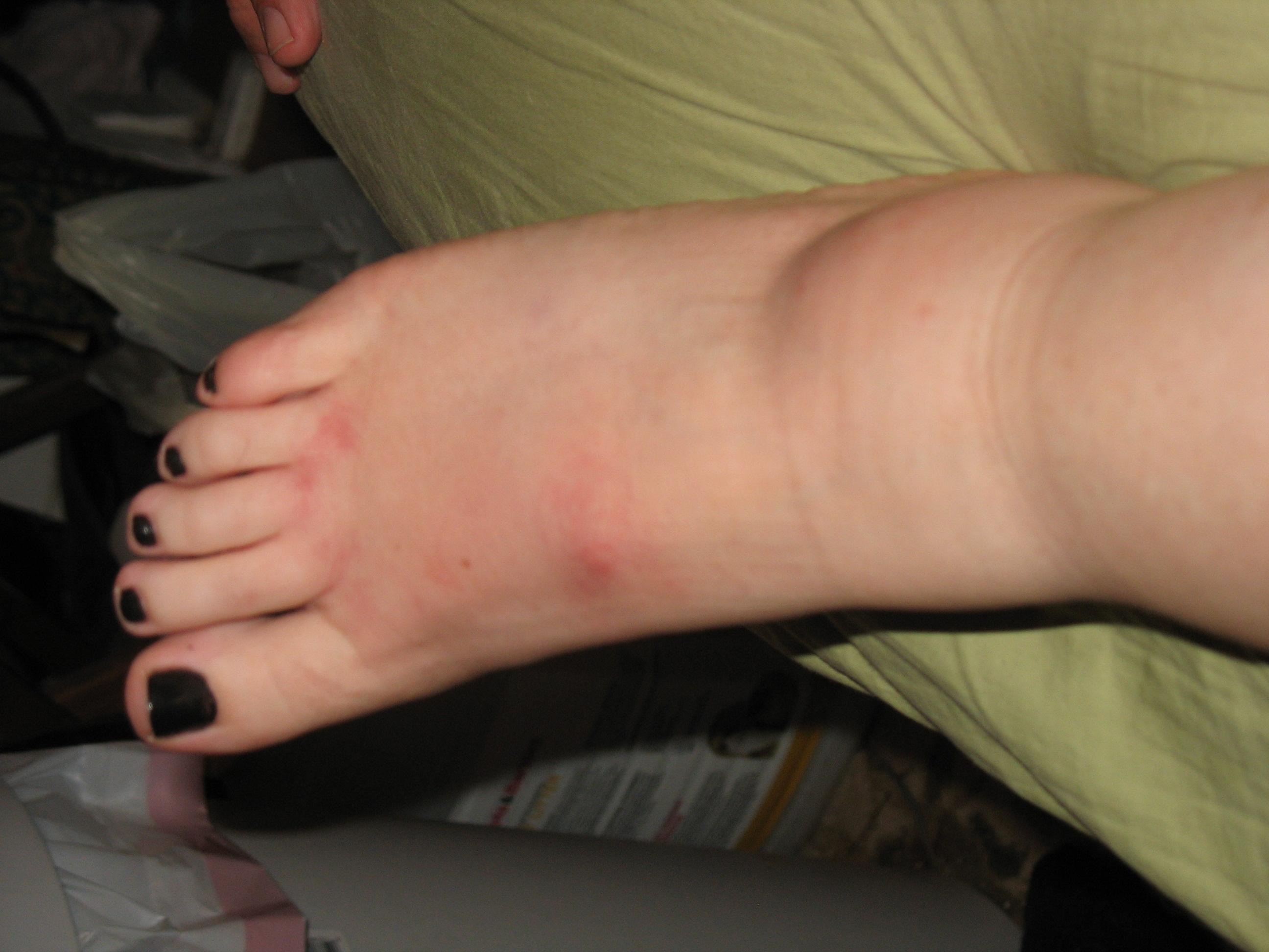 Fire Ant Bite Allergic Reaction Fire Ant Bites Allergi...