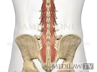 trial exhibit information Lumbar-Muscles-Multifidus-02