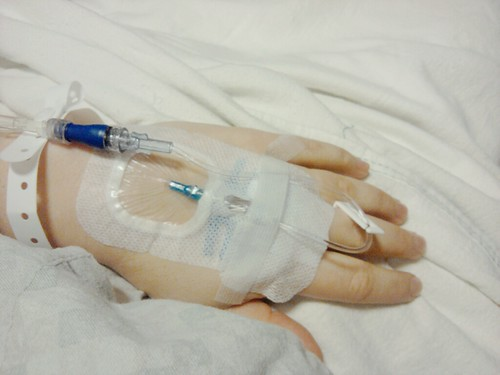 My IV